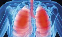 Шепетівщина -  одна з лідерів по захворюваності населення на туберкульоз